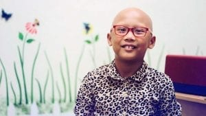 Young girl with alopecia with glasses smiling at camera.